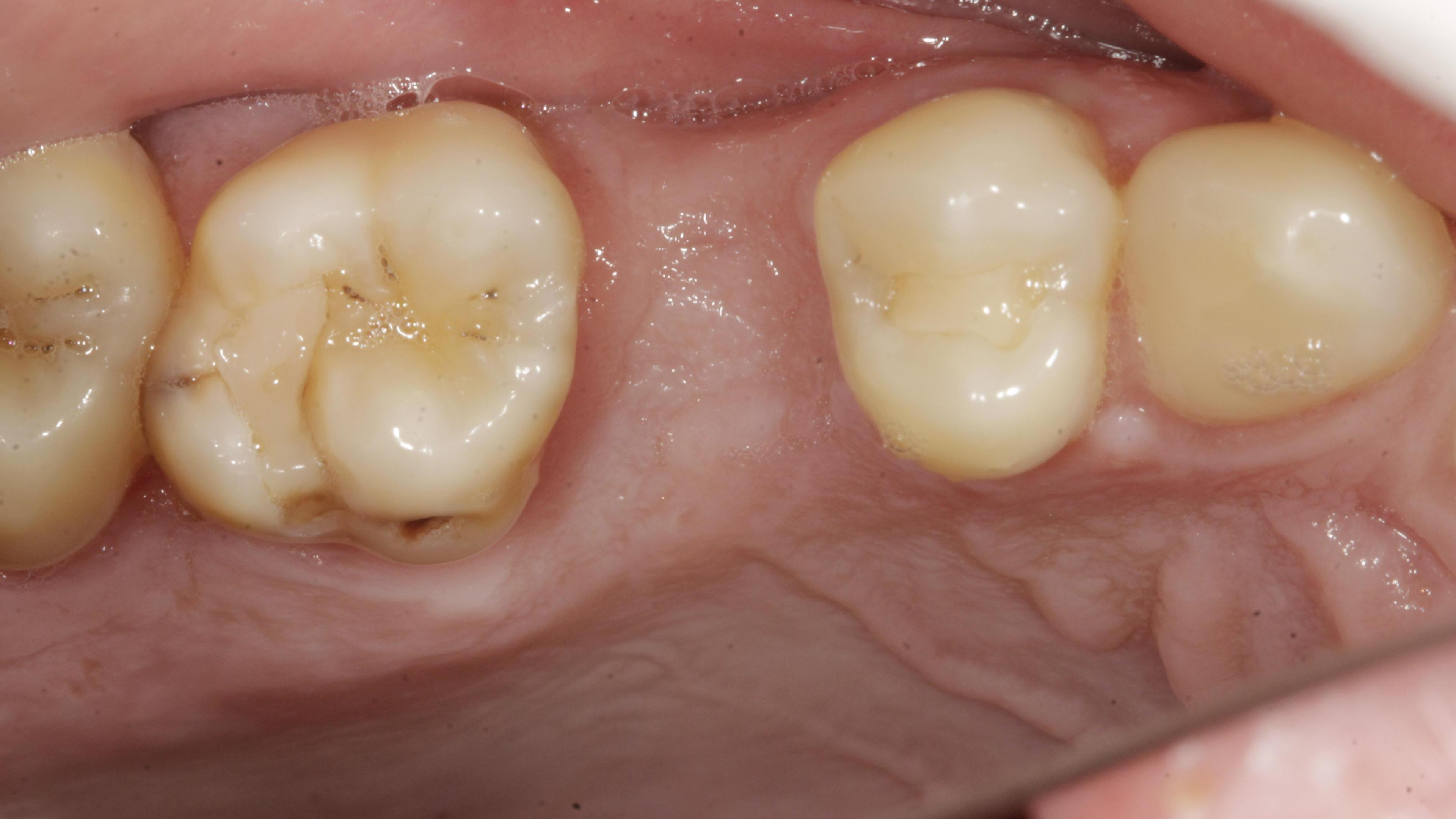 Single tooth loss Before treatment - Single implant