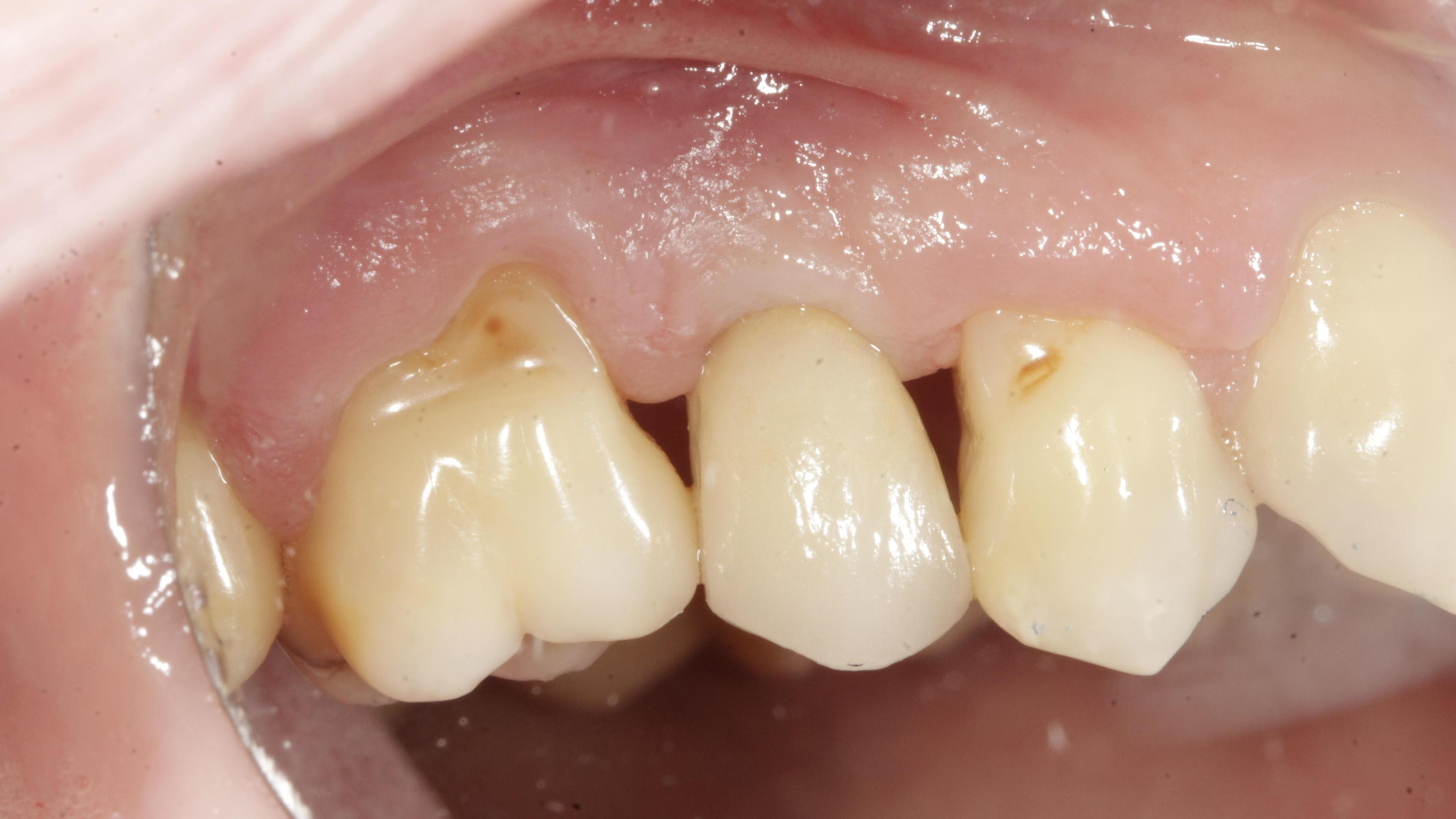 Single tooth loss After treatment - Single implant