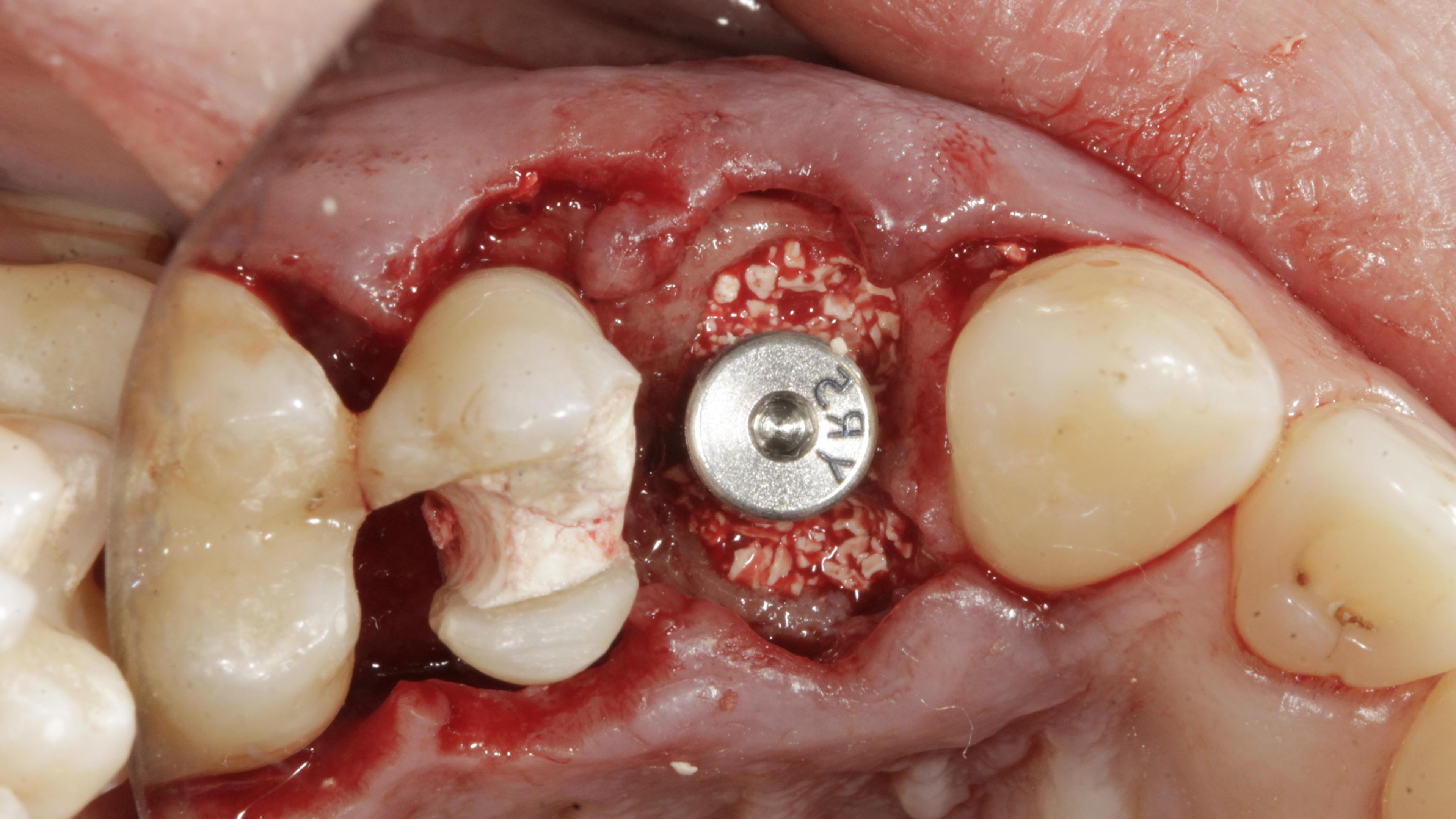 Immediate Implants After treatment - Immediate implant