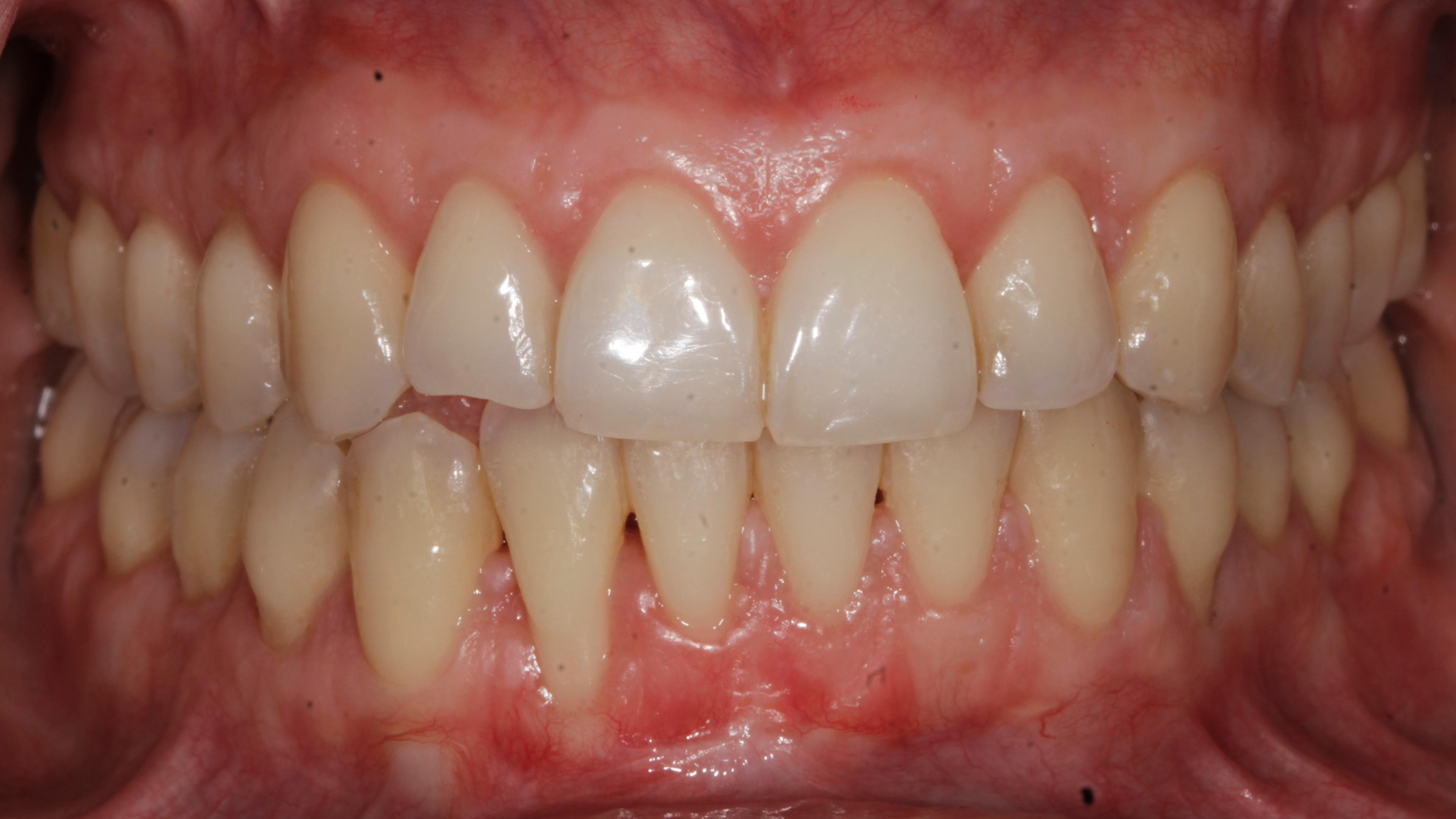 Periodontal plastic surgery After treatment - Root recessions