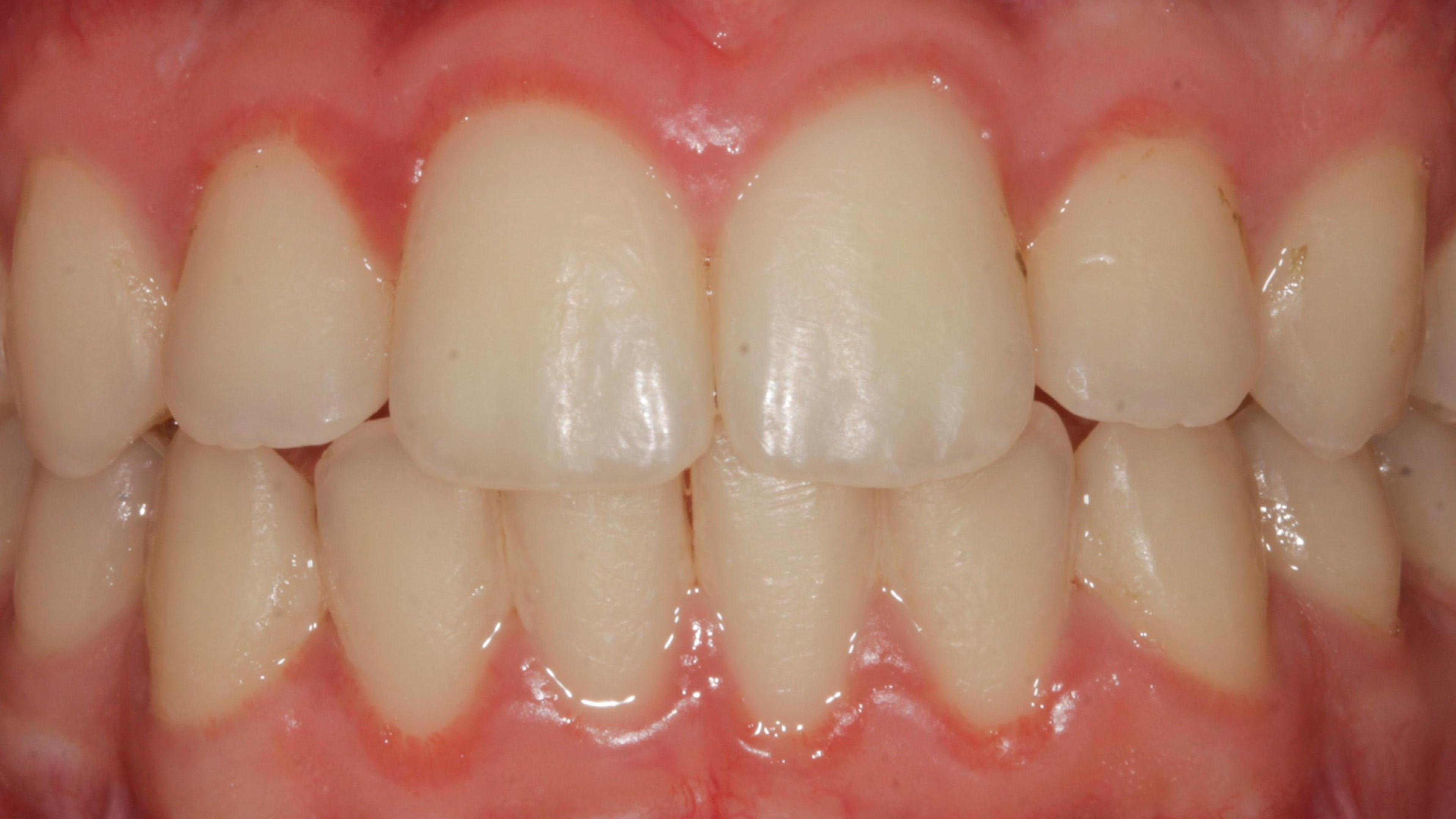 Gingivitis After treatment - Gingivitis