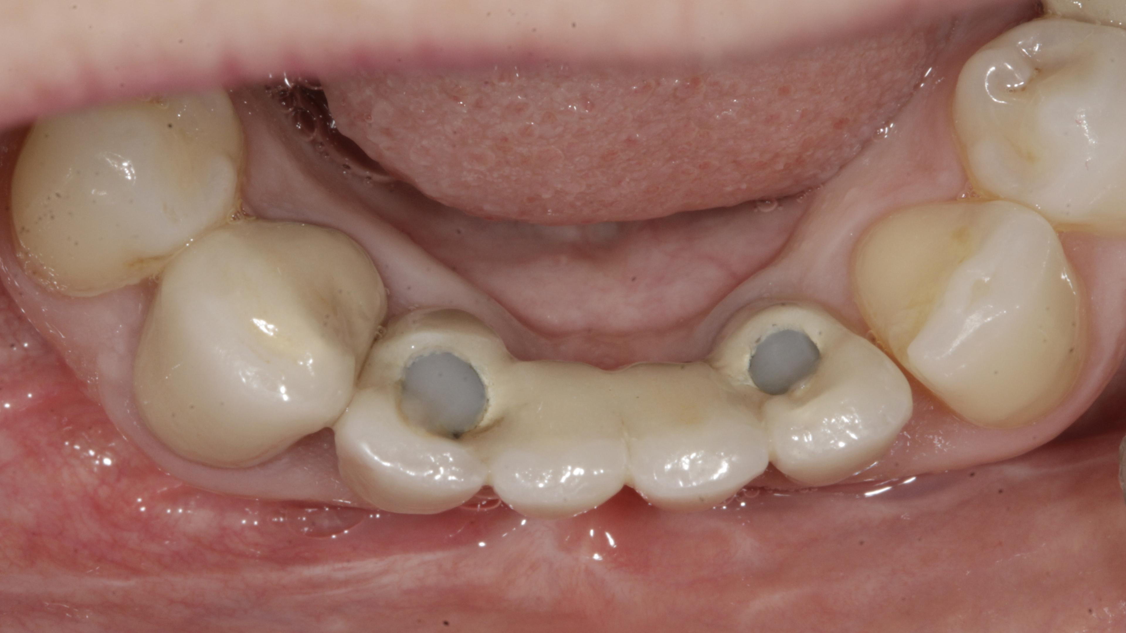 Partial edentulism After treatment - Missing more than one teeth